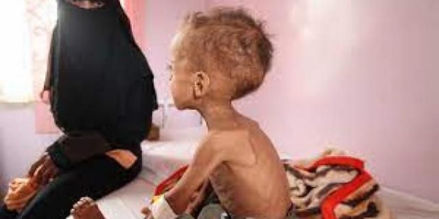 تقرير جديد للبنك الدولي يكشف عن مؤشرات مجاعة في 3 محافظات يمنية لأول مرة منذ عامين